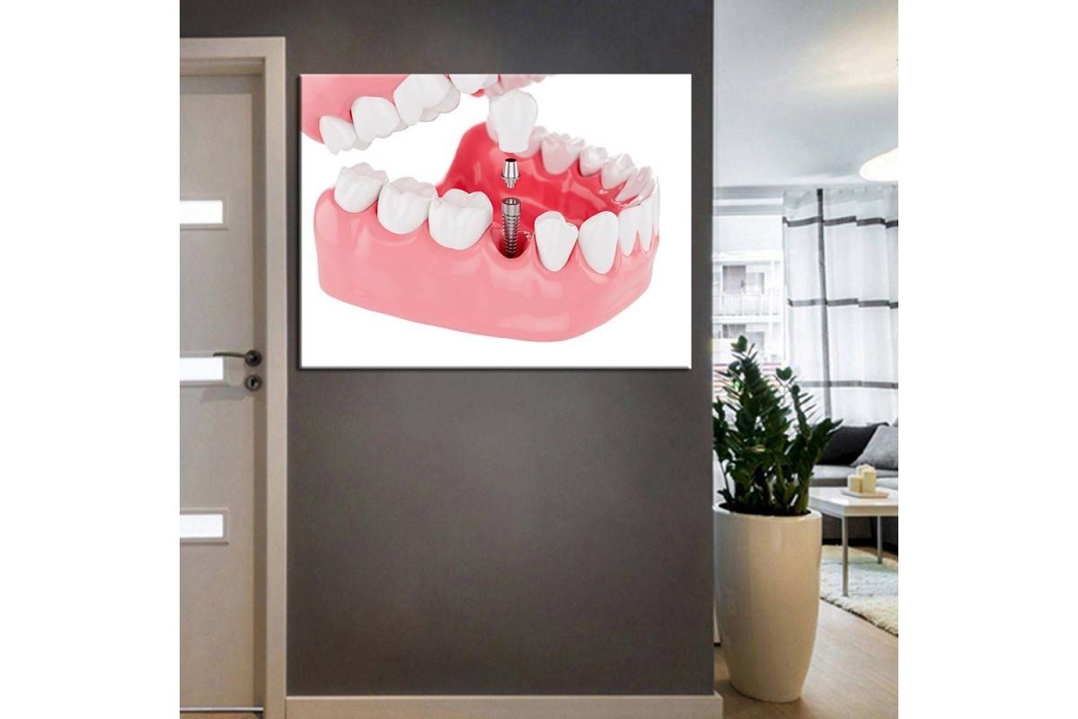 Ağız ve Diş Sağlığı Polikliniği Tabloları dsc-50