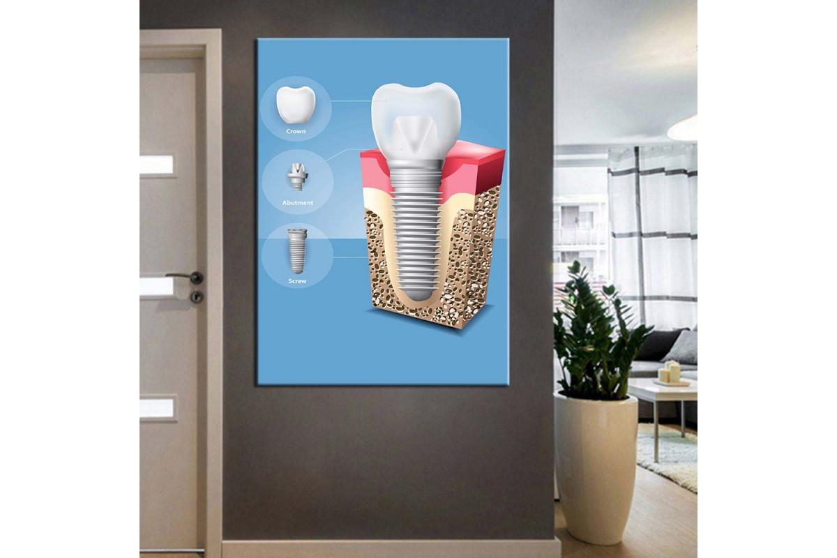 Ağız ve Diş Sağlığı Polikliniği Tabloları dsc-52