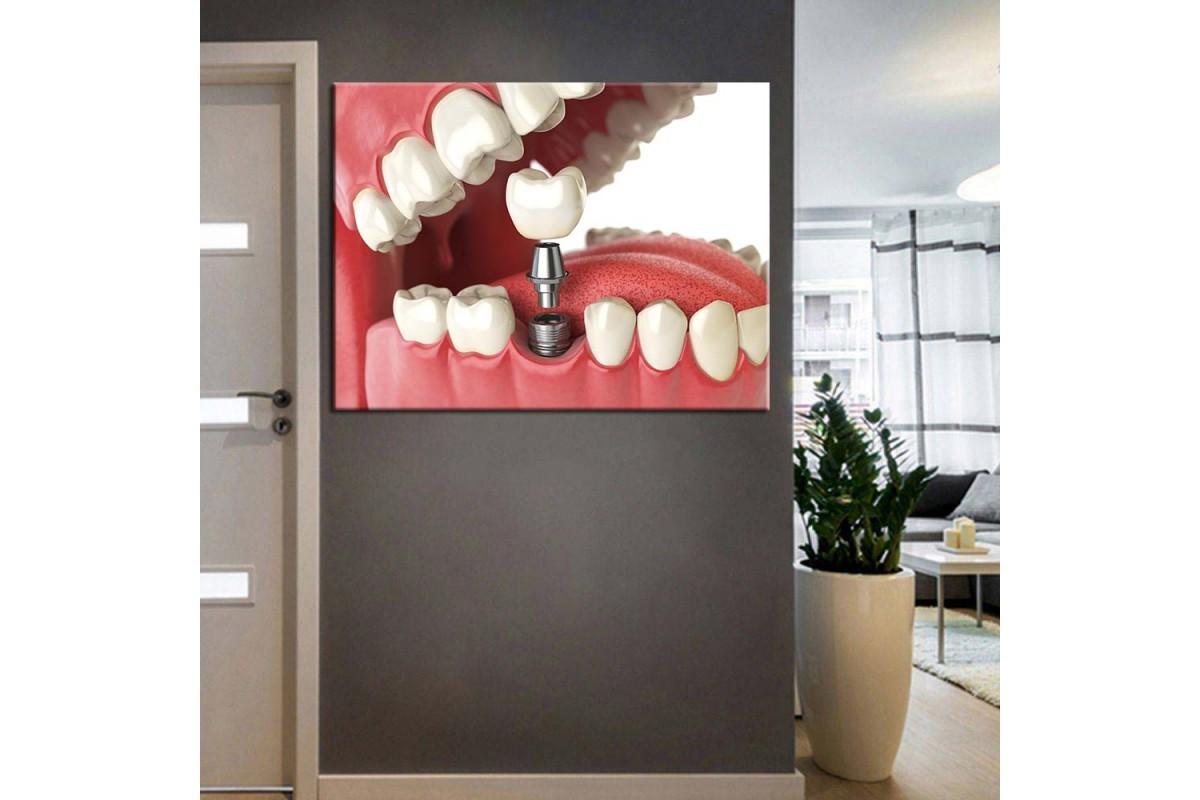 Ağız ve Diş Sağlığı Polikliniği Tabloları dsc-55