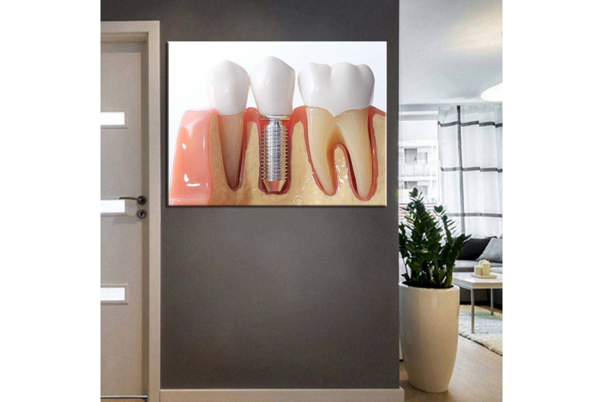 Ağız ve Diş Sağlığı Polikliniği Tabloları dsc-56