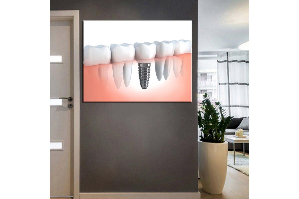 Ağız ve Diş Sağlığı Polikliniği Tabloları dsc-57