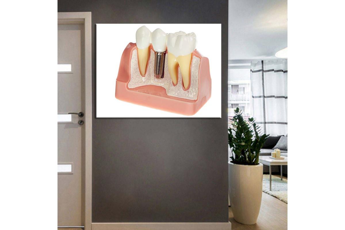 Ağız ve Diş Sağlığı Polikliniği Tabloları dsc-61
